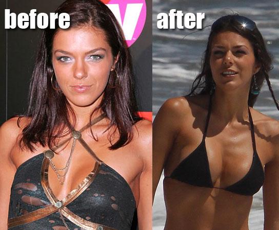 Qual e la migliore rimozione dei capelli per zona bikini
